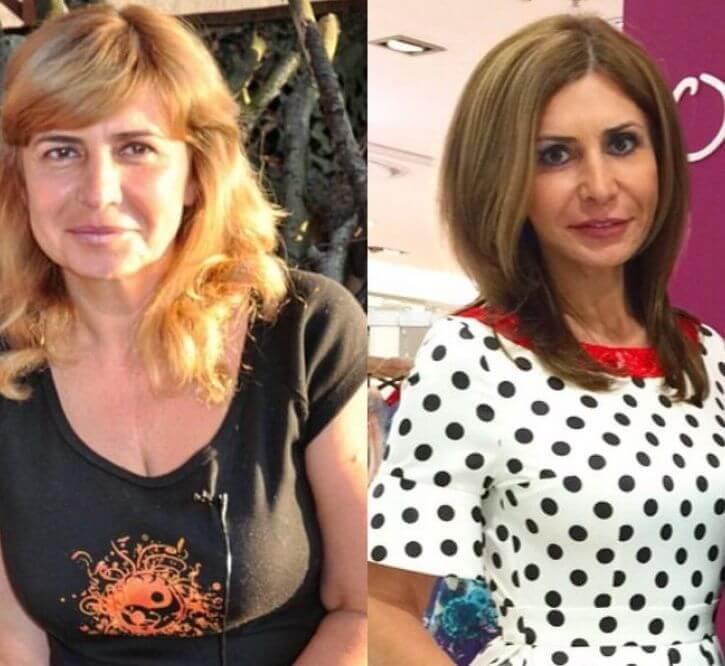 ирина агибалова до и после