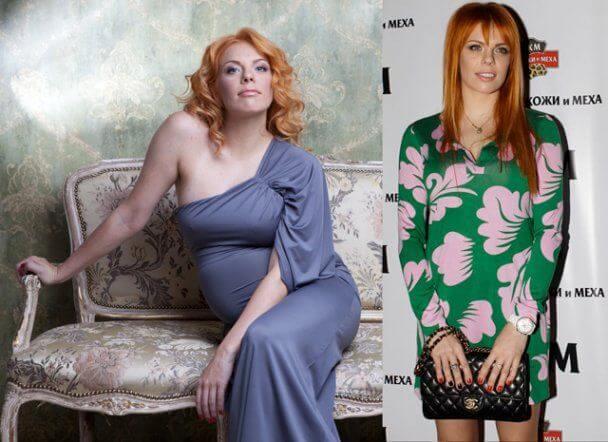 Стоцкая до и после