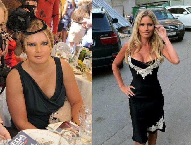 дана борисова фото до и после